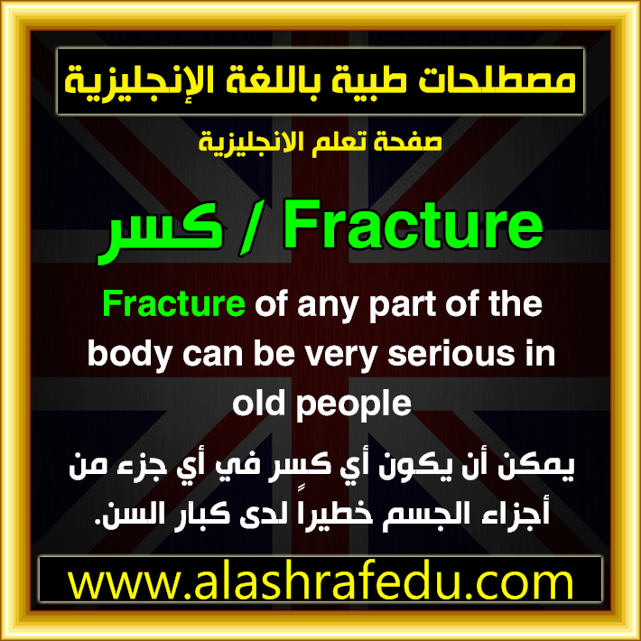 Fracture 2020 www.alashrafedu.com1